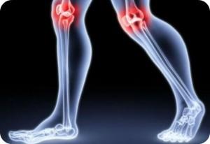 Objawy bólu stawów