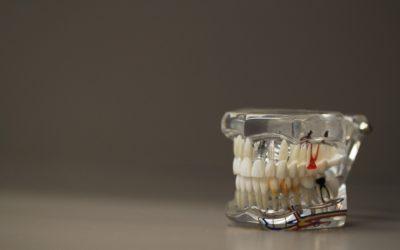 Złe podejście żywienia się to większe deficyty w jamie ustnej natomiast również ich brak